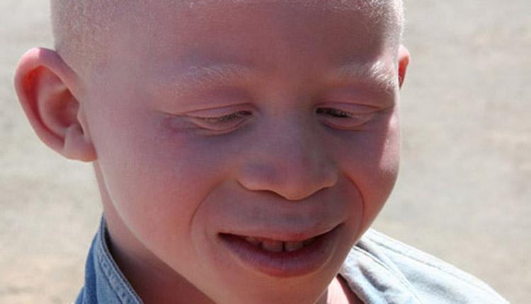 albini africani